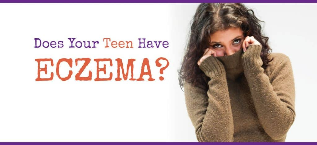 Eczema clinical study image of teen
